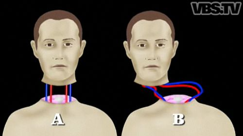 headtransplantwhite.jpg