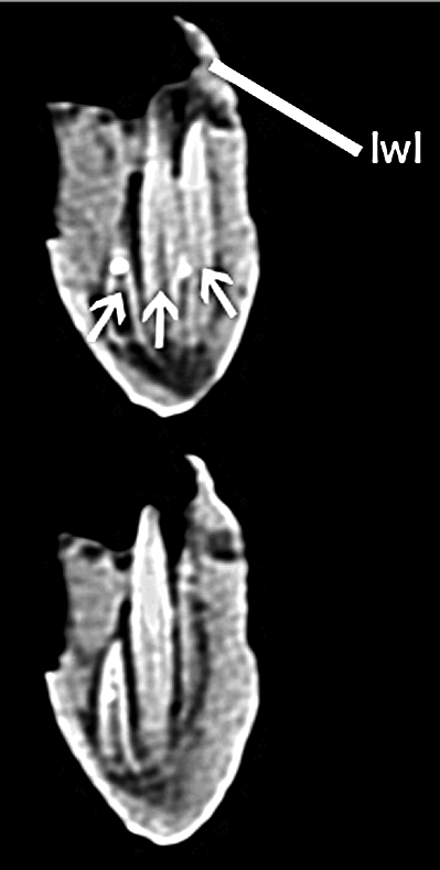 CT Scan do dentário de Brasilotitan, mostrando um dos alvéolos dentários com três dentes inseridos.