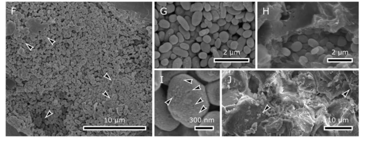 Imagem do artigo, mostrando os corpúsculos esféricos presentes no fóssil, que conteriam a melanina.