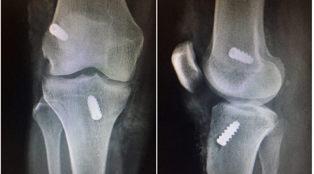 996eb9ac4880c7 A Cirurgia do Ligamento Cruzado Anterior - FÊMUR DISTAL