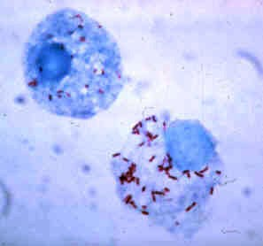 Rickettsias vista em microscópio