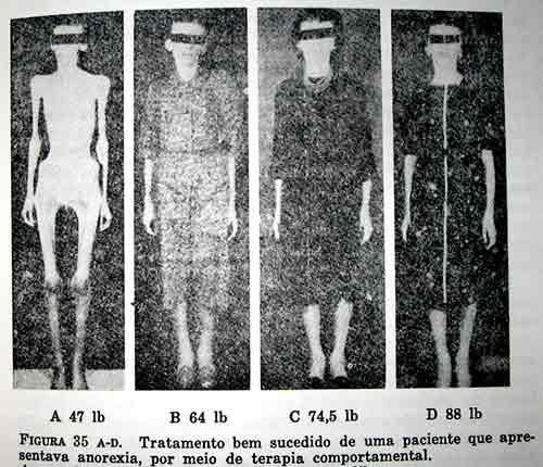 20090920_anorexia.jpg