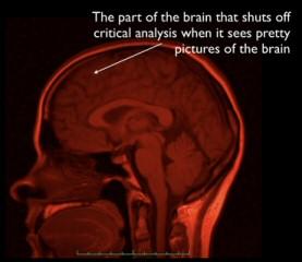 20102802_brain.jpg