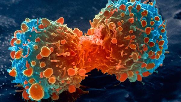 Como o Design Inteligente racionaliza o câncer?