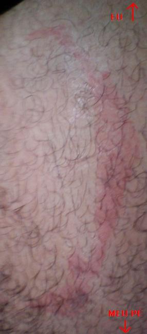 queimadura na perna.jpg