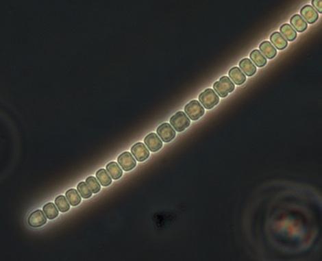 cyanobacteria2_brmma.jpg