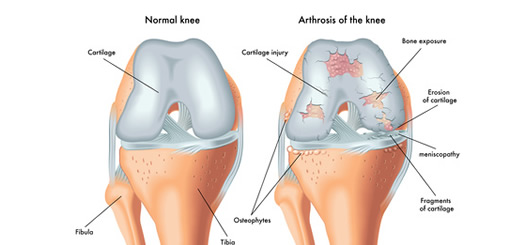articulația sciatică doare biomecanica soldului